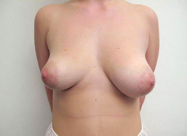 breast-enlargement-before