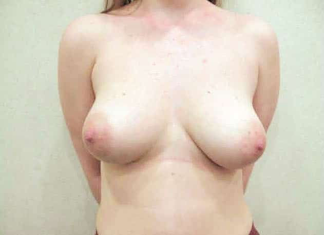 breast-enlargement_after