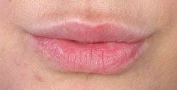 permalip-lip-enhancement-front-after