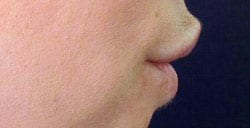 permalip-lip-enhancement-side-after