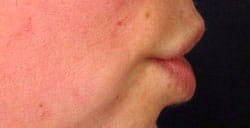 permalip-lip-enhancement-side-before