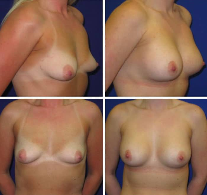 Breast_Augmentation