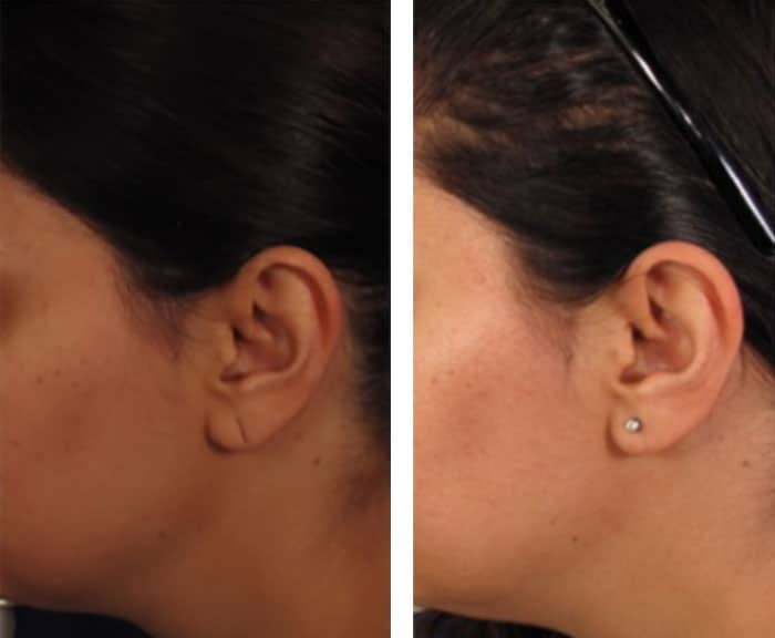 Ear-Lobe-Surgery