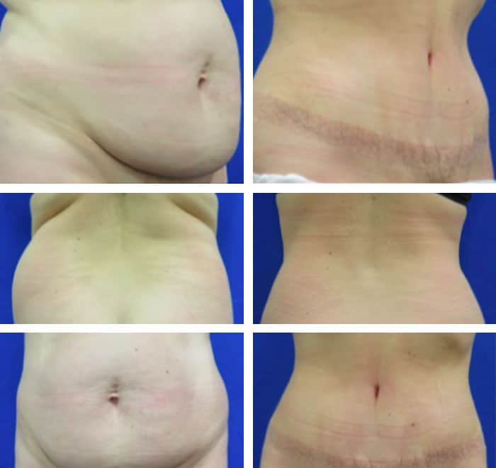 76a871f0b53 35-44 year old woman treated with Tummy Tuck