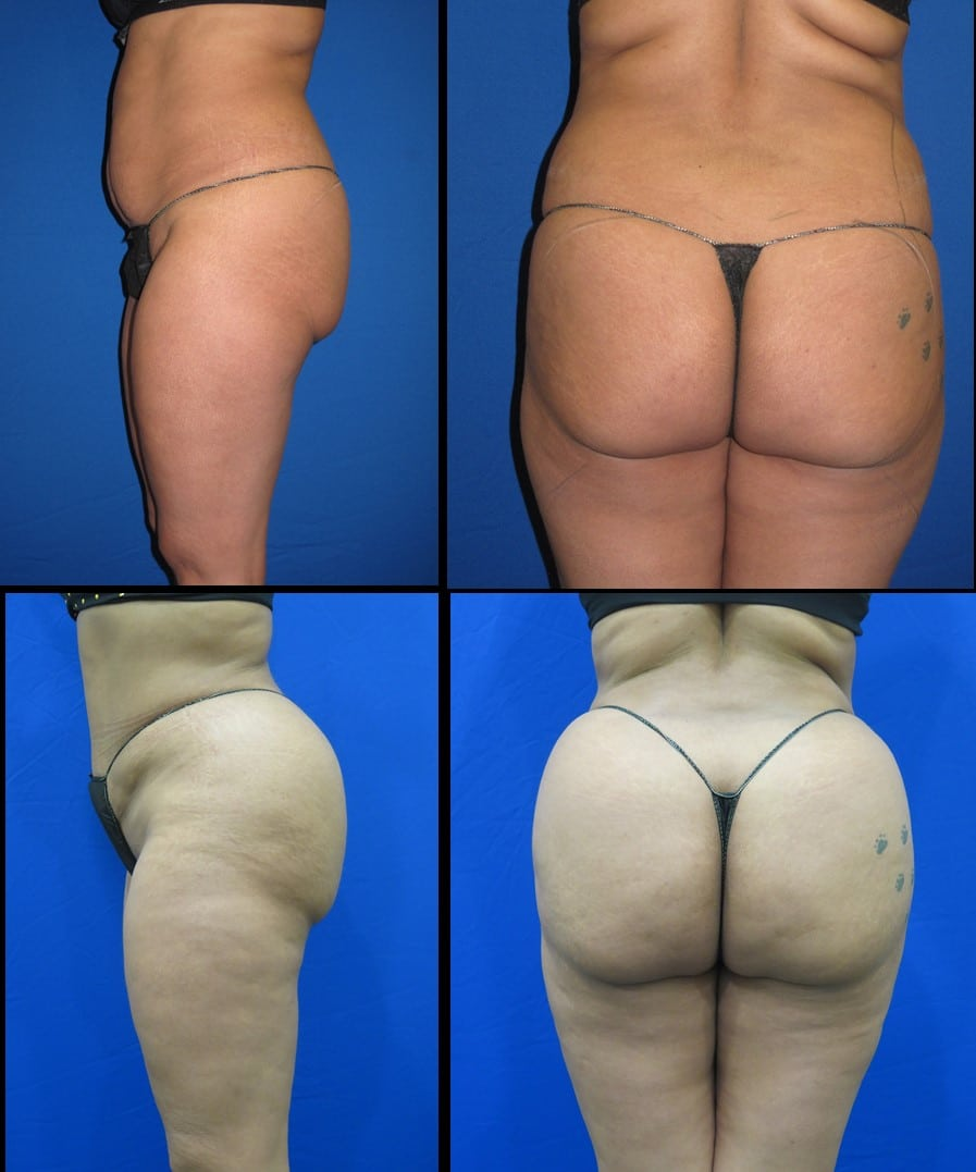 Brazilian Butt Lift | Fat Transfer to Buttock | Kat & Co