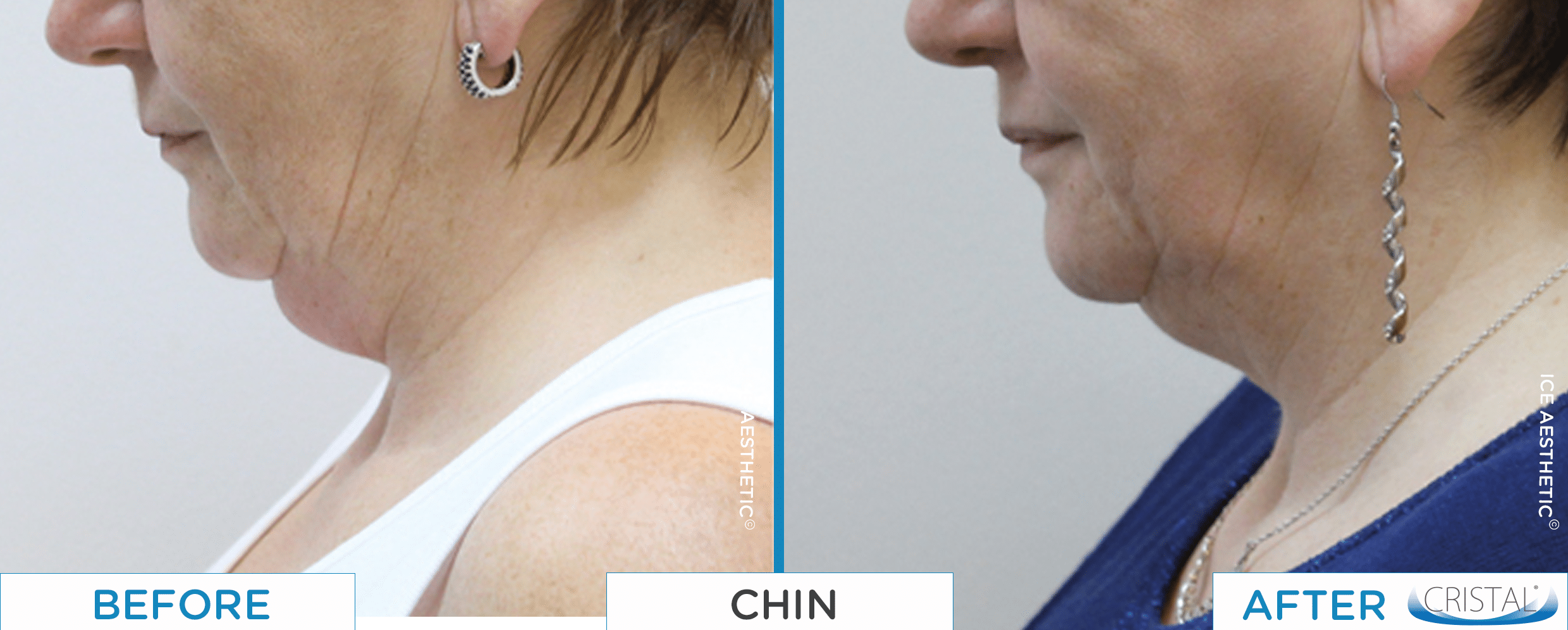 CRISTAL before and after chin