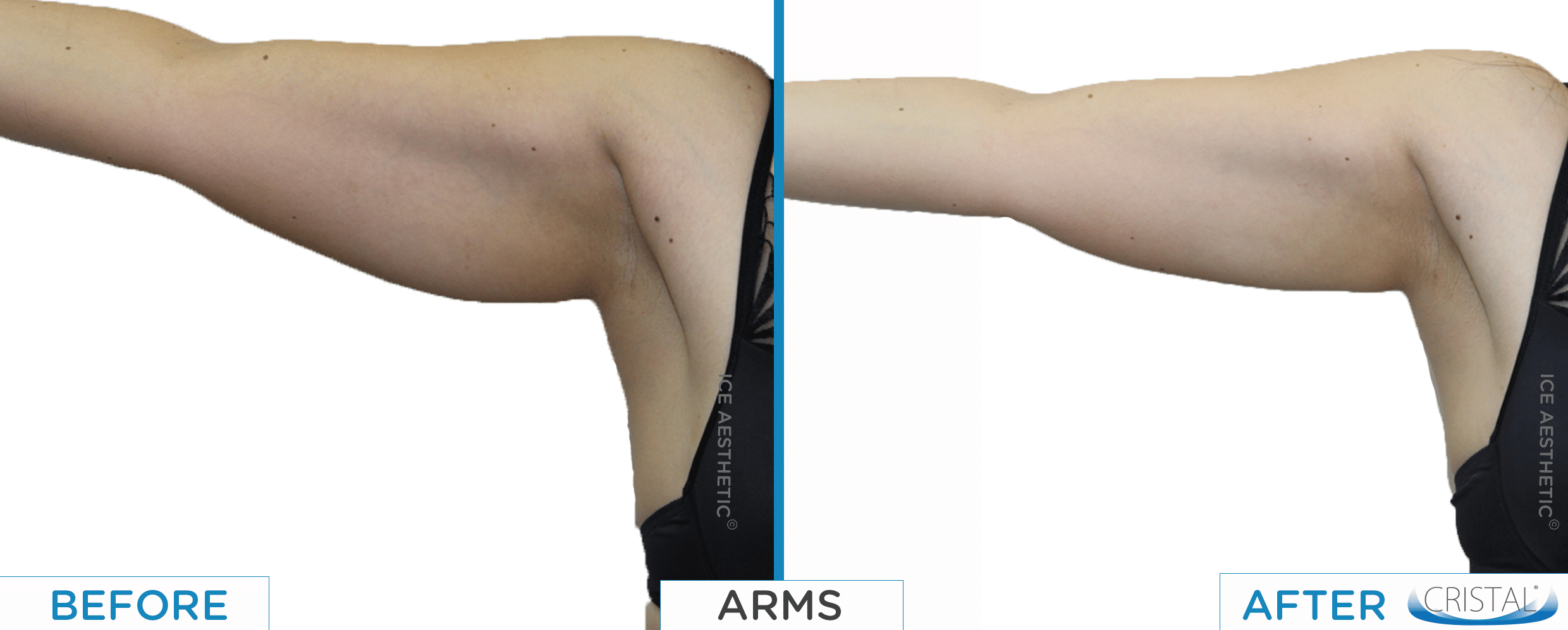 CRISTAL before and after arm