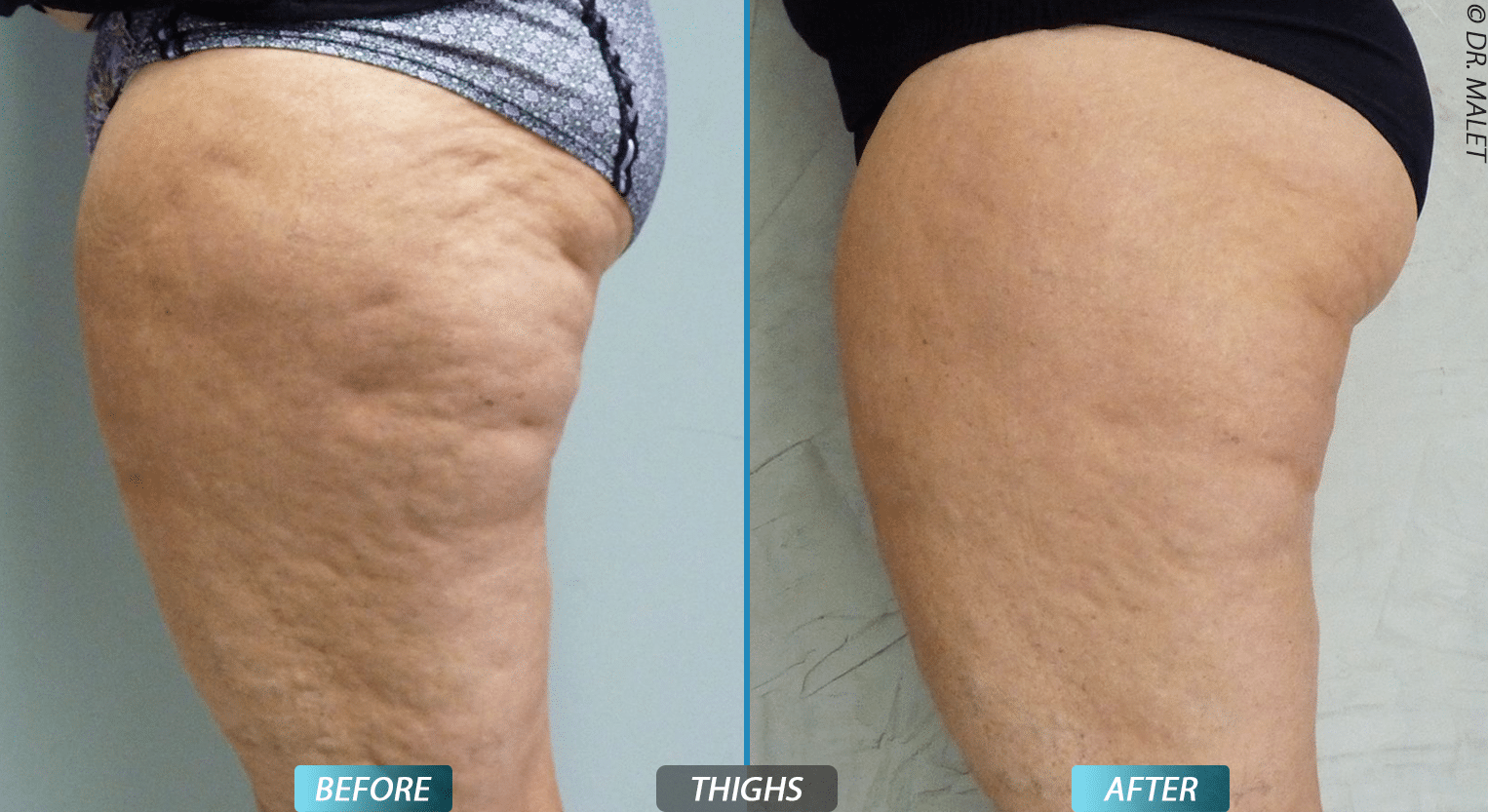 CRISTAL before and after thigh