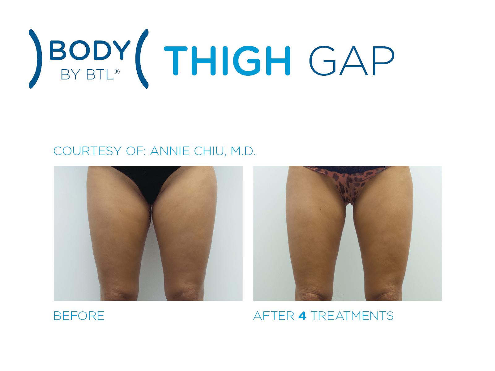 btl body thigh gap