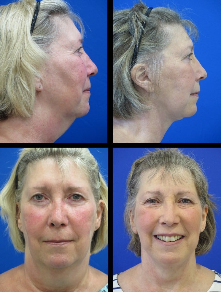website neck lift