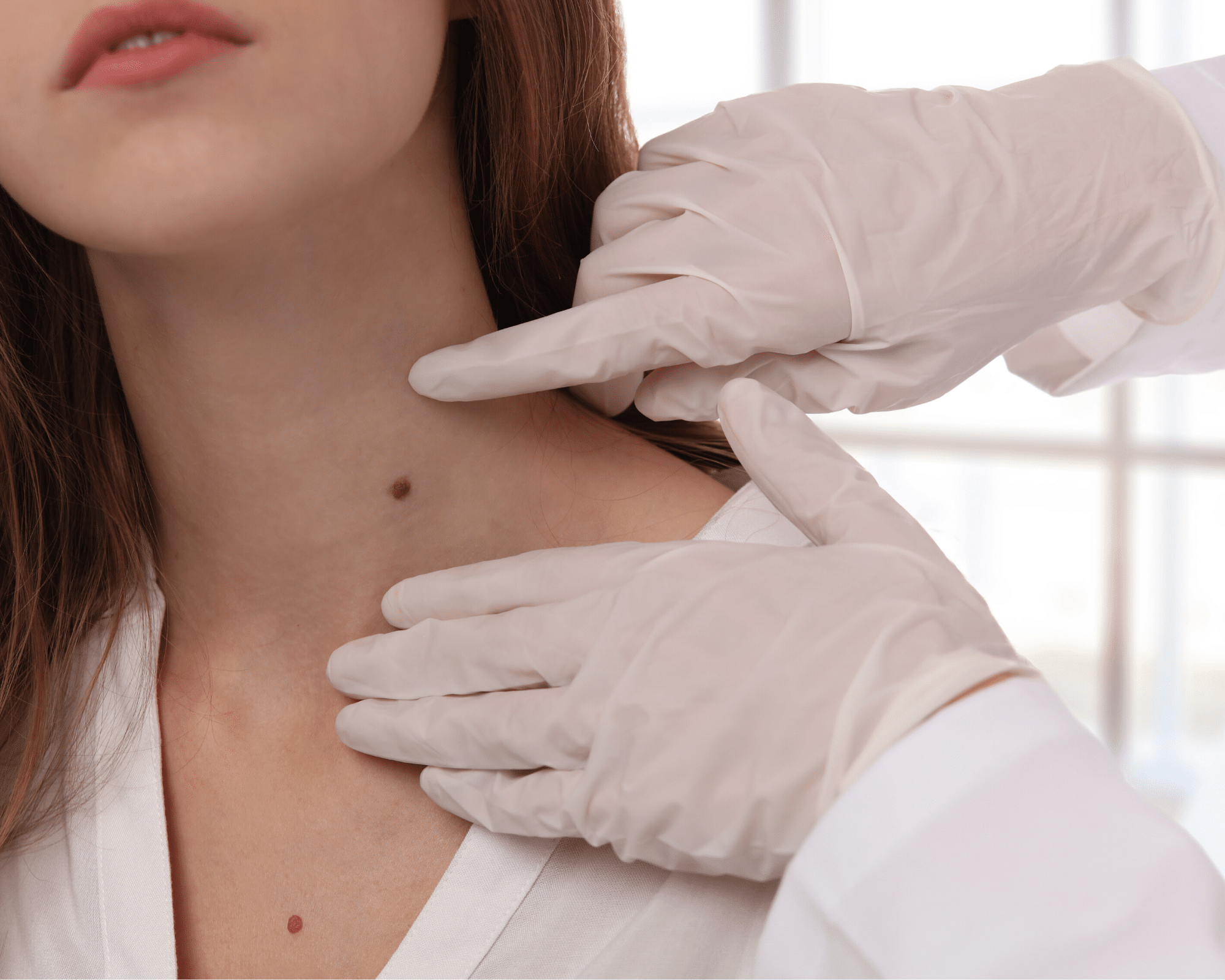 Mole on Front of Neck