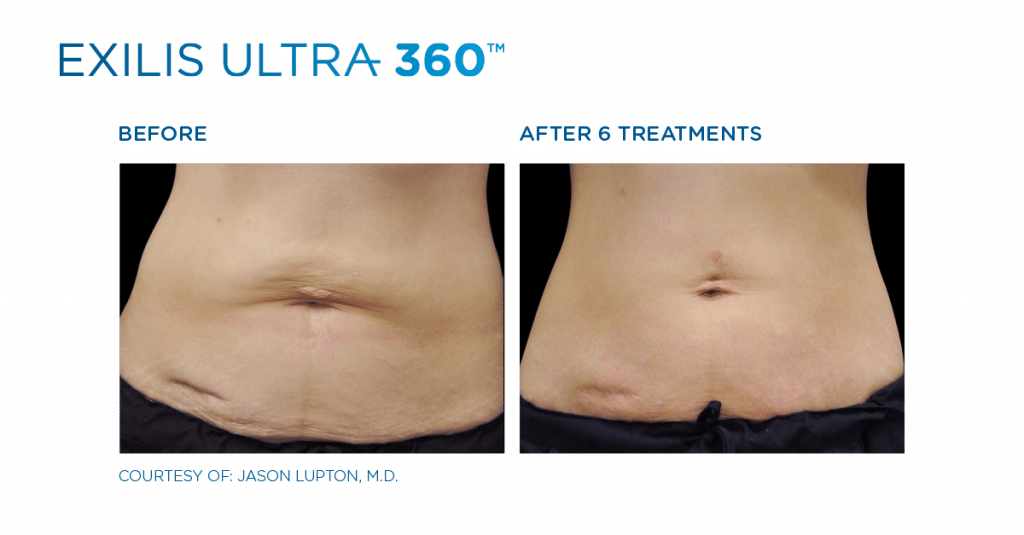 After 6 Treatments of Exilis
