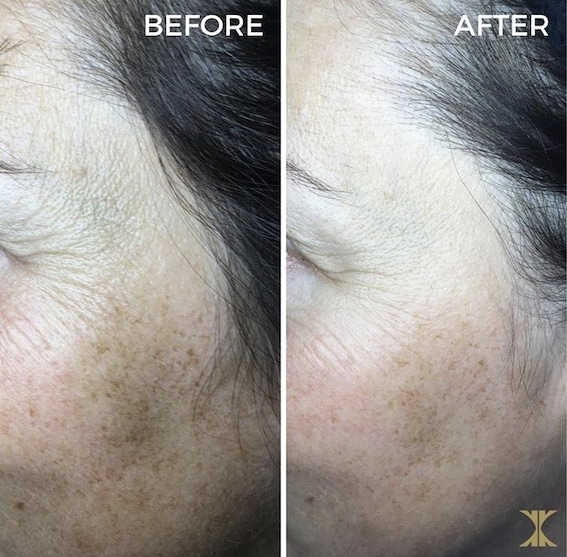 Before and After SkinPen Treatment