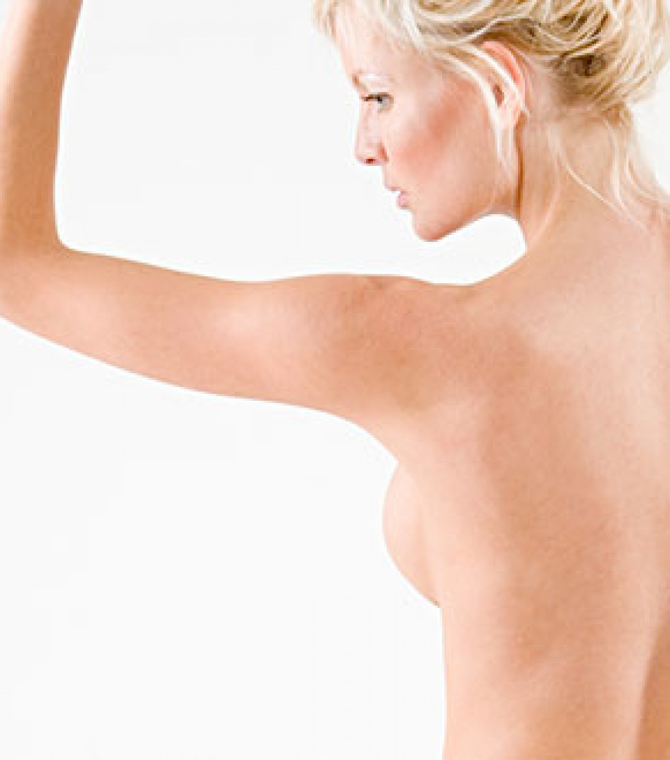 upper-arm-reduction