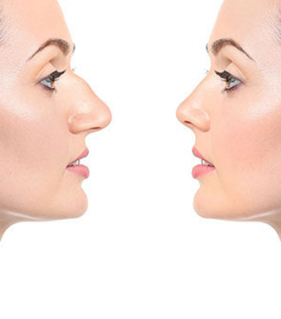 surgical_rhinoplasty_homepage